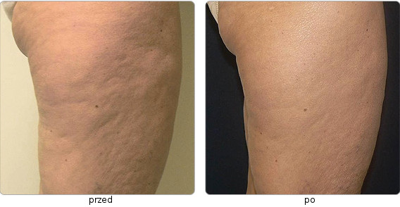 Accent Elite skin firming - post-treatment effects