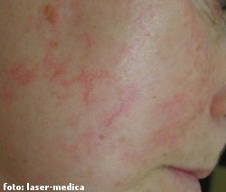 closing capillaries with laser