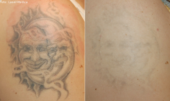 Tattoo removal hoya conbio medlite 4 laser laser medica for Allergic reaction to tattoo ink treatment