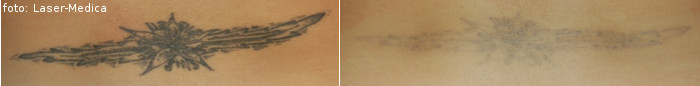 Tattoo removal - effects